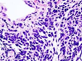 Lung small cell carcinoma (1) by core needle biopsy.jpg