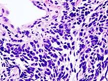 recidiva carcinoma prostatico terapia y