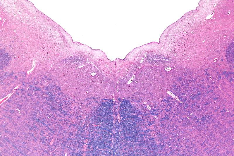 Medulla oblongata - HowlingPixel