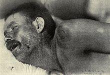 kaku leher,meningitis,gejala meningitis,kasus meningitis