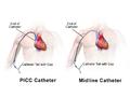 PICC vs. Midline Catheter.png