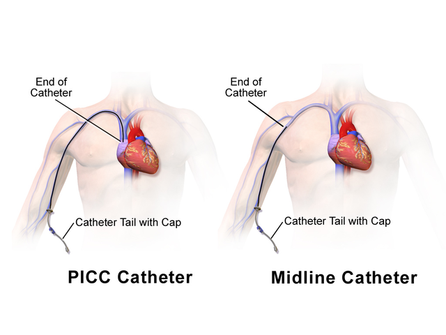 Picc Line Home Care Instructions