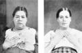PSM V51 D499 Myxoedema before and after treatment.png