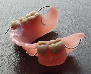 protesis metalica removible inferior