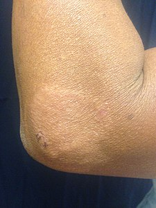 Leprosy - Wikipedia