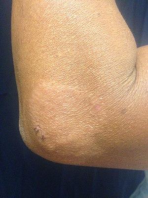 Paucibacillary leprosy (PB).jpg