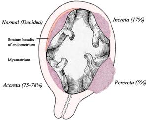 Placenta Accreta Ectopic Pregnancy Signs Treatment And