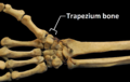 RightHumanAnteriorDistalRadiusUlnaCarpals - Trapezium bone.png
