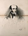 Robert Liston. Lithograph by M. Gauci, 1836, after E. U. Edd Wellcome V0006545.jpg
