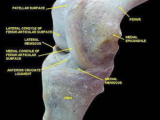 Medial epicondyle of the femur - Image: Slide 2wewew