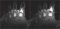 Visualization of Joint Cavitation.png