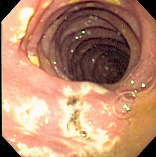 Zollinger–Ellison syndrome Condition in which tumours stimulate excessive gastric acid production