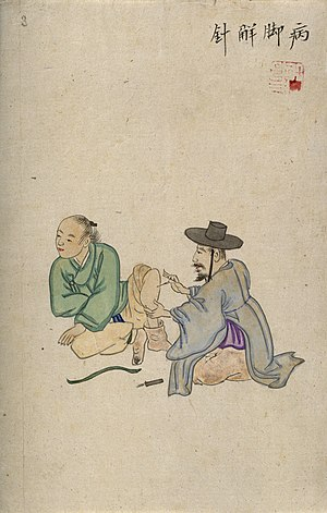Traditional Korean medicine - A Korean acupuncturist inserting a needle into the leg of a male patient. Wellcome Collection