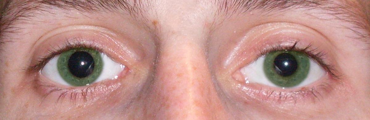 Ухудшилось зрение от вспышки