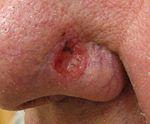 Basal cell carcinoma3.JPG