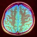 Brain MRI 143937 rgbca.png