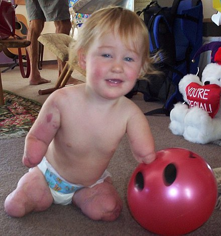 Charlotte Cleverley-Bisman, who had all four limbs partially amputated aged seven months due to meningococcal disease. Charlotte Cleverley-Bisman.jpg