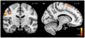 Dissociative identity disorder neuroscience brain imaging (no description).png