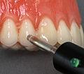 Electric pulp testing tooth.jpg