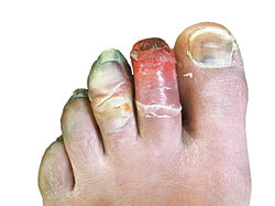 Human toes, 12 days post-frostbite.jpg