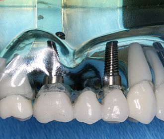 Dental implant - A bridge of teeth can be supported by two or more implants.