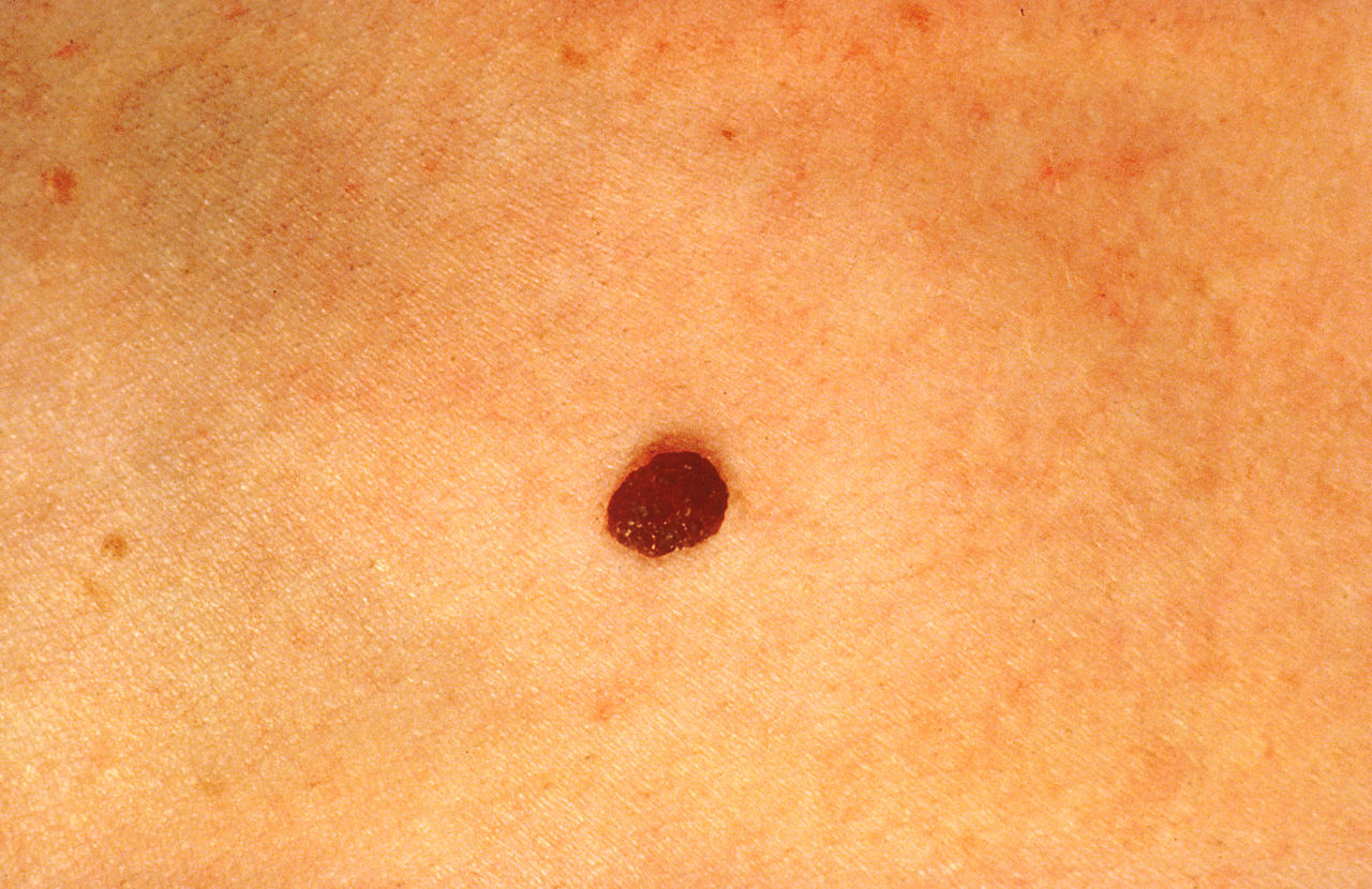 Skin Cancer K Symptoms