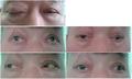 Oculomotor nerve palsy.png
