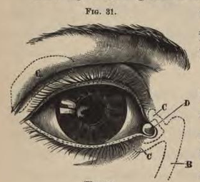Physiology for Young People - 1884 - The eye.png