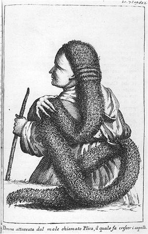Dreadlocks - Sartori Plica polonica. 1734-1766.