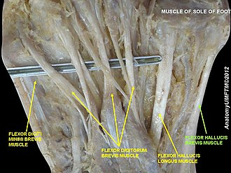 Flexor hallucis brevis muscle - Image: Slide 8ABA