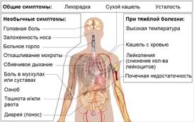 человеческий коронавирус