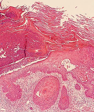 Ulcer border of a squamous cell skin cancer