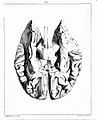 """""""Traite complet de l'anatomie..."""", Foville, 1844 Wellcome L0019129.jpg"""