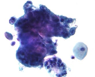 Cervical canal - Micrograph of an adenocarcinoma that arose from the endocervical mucosa. Pap stain.