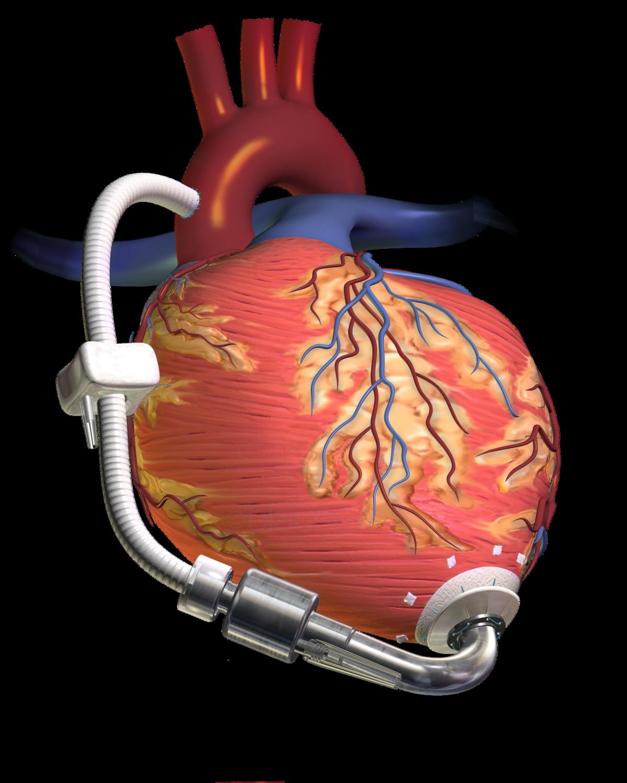 Keuhkovaltimopaine