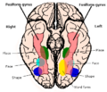 Constudproc - inferior view (Fusiform gyrus).png
