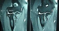 Epicondylitis in MRI.JPG