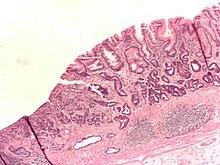 appendix pain during period