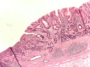 Adenocarcinoma of the stomach and intestinal m...