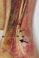Gross anatomy of retromalleolar region.png