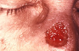 Gumma of nose due to a long standing tertiary syphilitic Treponema pallidum infection 5330 lores.jpg
