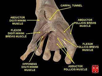 Abductor digiti minimi muscle of hand - Image: Hand dissection 6