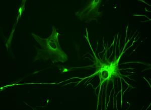 Astrocyte - 23-week-old fetal brain culture human astrocyte