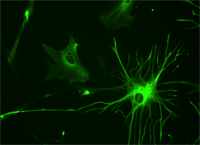 File:Human astrocyte.png