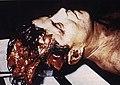 JFK autopsy.jpg