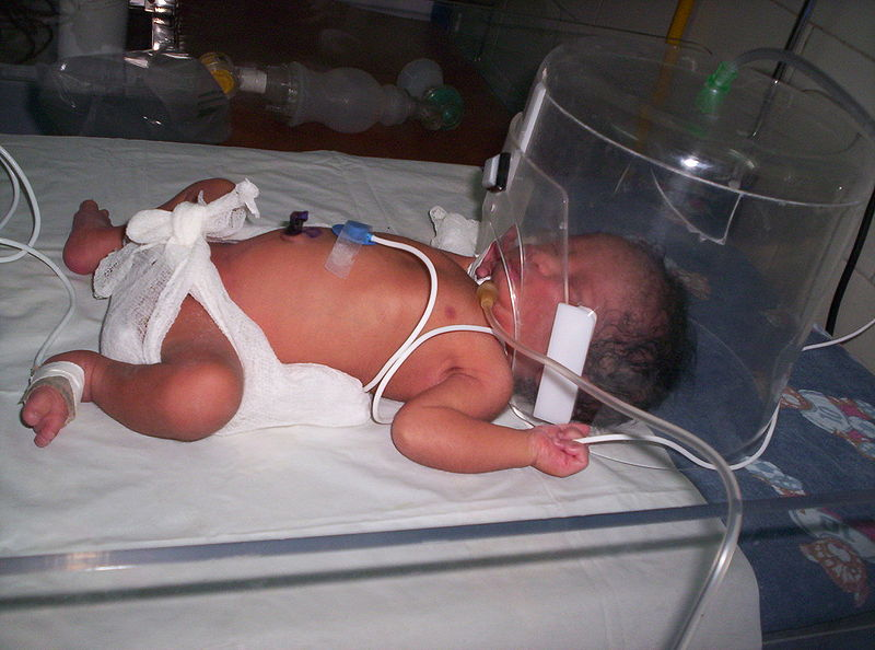 12 Penyakit dan Kondisi pada Bayi Prematur