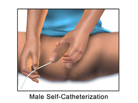 Image Male Self-Catheterization