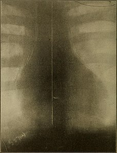 Medical diagnosis for the student and practitioner (1922) (14781522021).jpg