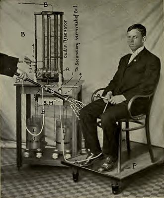 "Oudin coil - Treatment by effluvium method using Oudin coil, 1907. The insulated electrode (B), attached to top of the coil, is directed at knee.  The patient holds a ""ground"" electrode (A) attached to the coil bottom. Note doctor's other hand (D) adjusting coil."