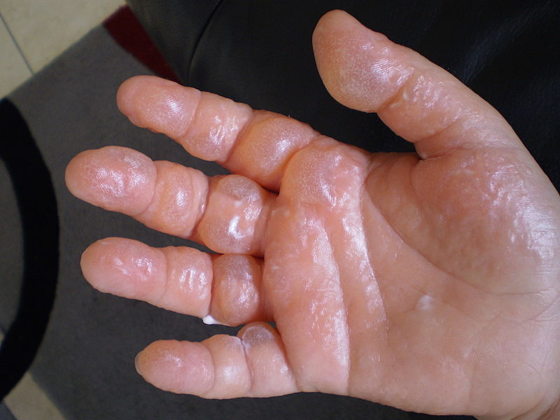 Hand Foot And Mouth Disease Natural Treatment